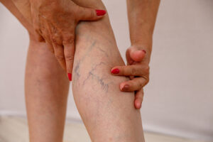 varicose veins woman