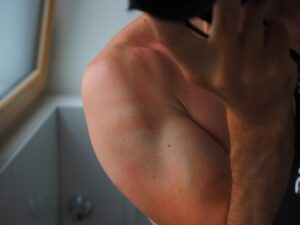 sunburn-home-woman